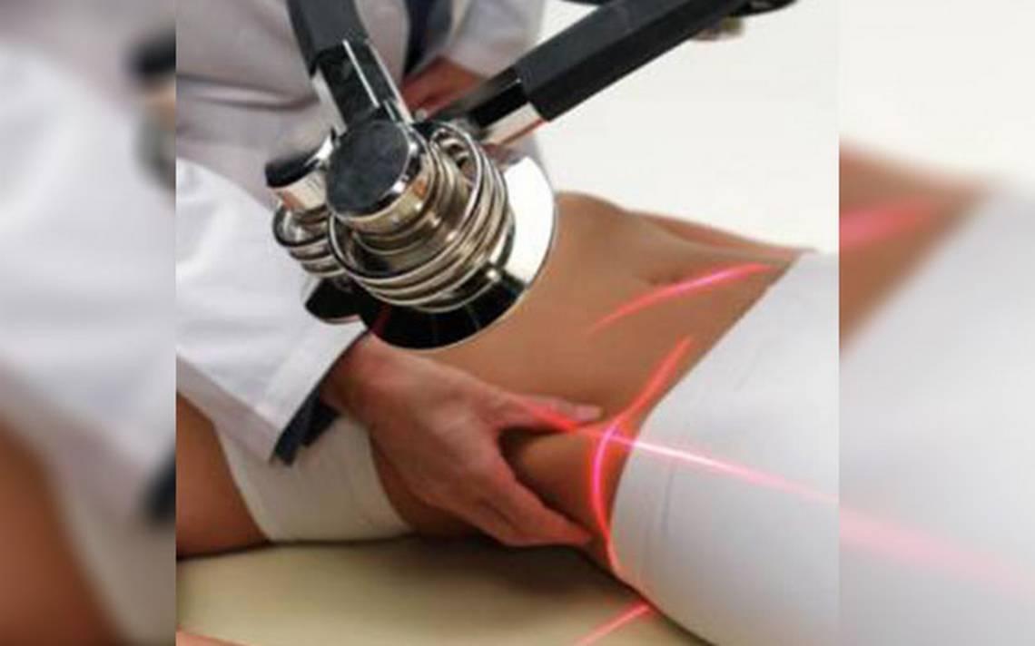 laser frio para adelgazar