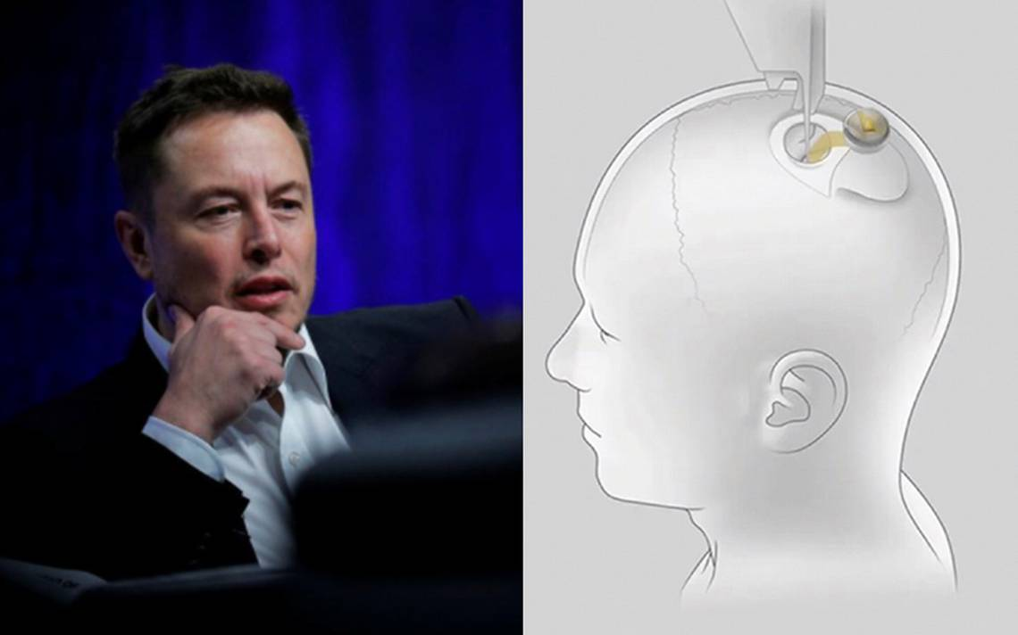 All about the chip that Elon Musk and Neuralink develop for human brains –  World Today News