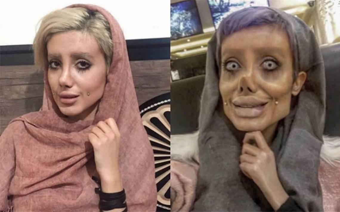 """Sahar Tabar No Photoshop >> """"Todo es Photoshop"""", revela joven que supuestamente se operó para ser Angelina - Diario de Querétaro"""
